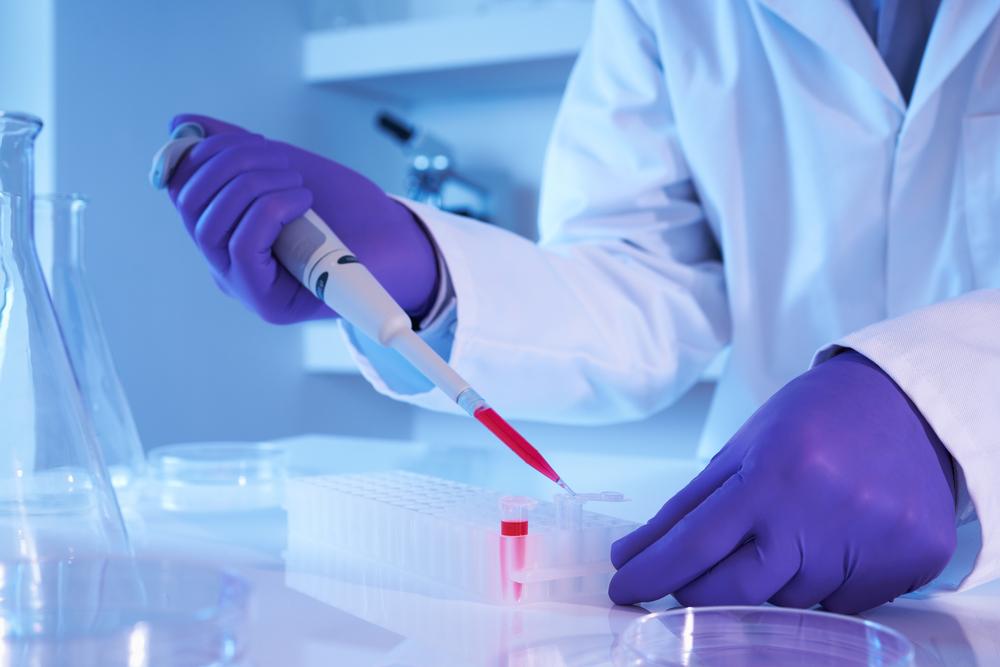тест на сифилис в лаборатории